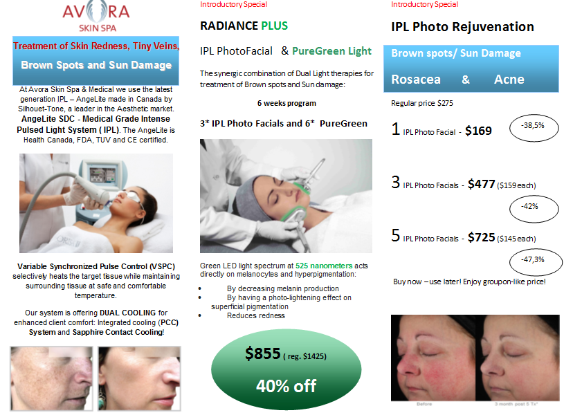 IPL radiance plus offer