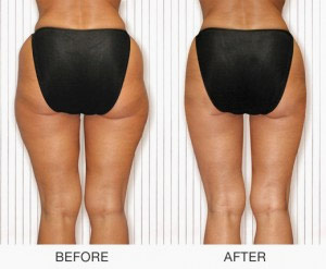 Slim Concept Body Firming Toning