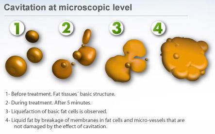 Ultra Cavitation Fat Reduction