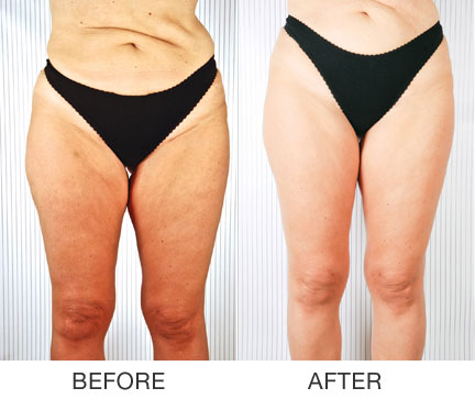 Wave6 Anti-Cellulite Body Contouring Coquitlam