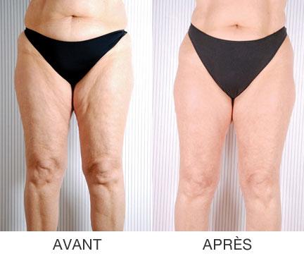 Wave6 Anti-Cellulite Body Contouring Coquitlam