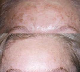 hyperpigmentation treatment avora skin spa coquitlam
