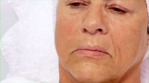 collagen-fractional-micro-needling_01