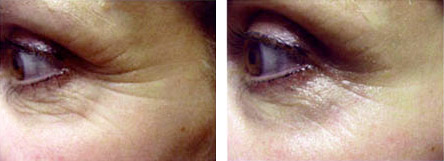 eye zone treatment therapy at Avora Skin Spa, Coquitlam