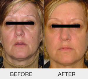 kinelift-non-surgical-face-lifting_03