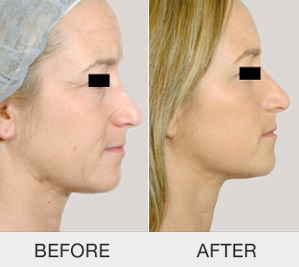 kinelift-non-surgical-face-lifting_04