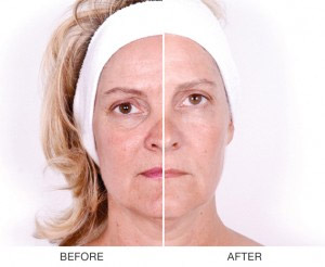 led-photo-facial-therapy_04
