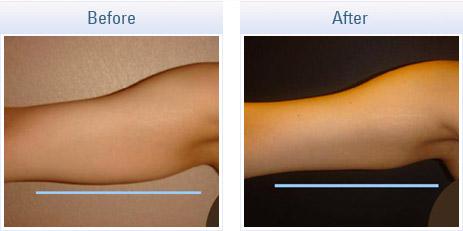 skin-tightening-rf_02