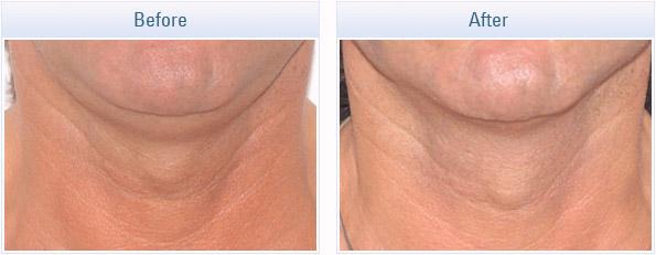 skin-tightening-rf_05