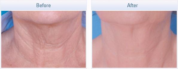 skin-tightening-rf_06