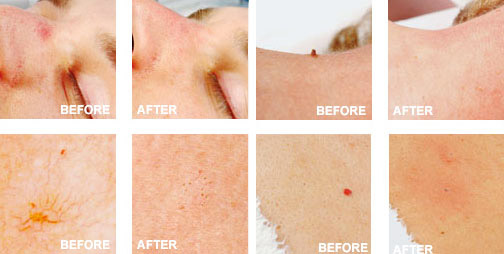 vasculyse-2g-skin-tags-spider-veins-removal_02