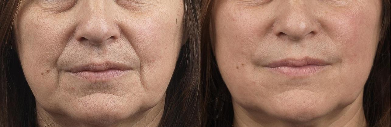 Cheekbones remodeling / Face Volumizers Fillers / Liquid