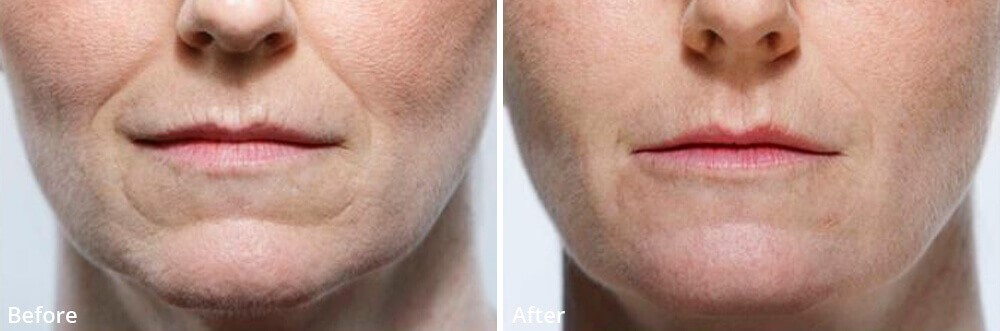 chin lines filler coquitlam