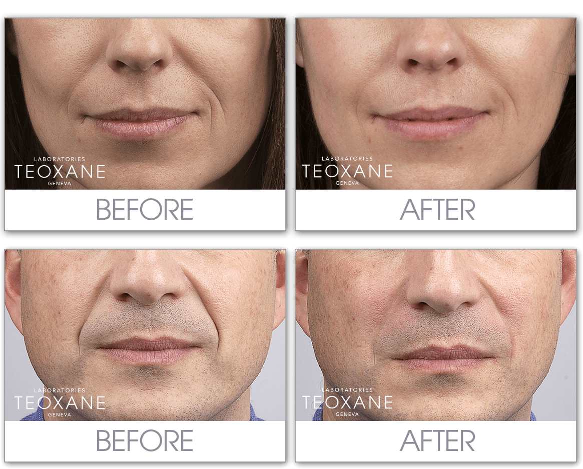 wrinkle fillers coquitlam