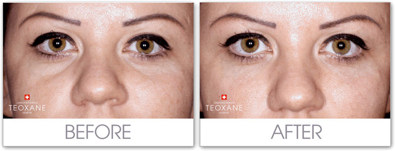 eye filler coquitlam