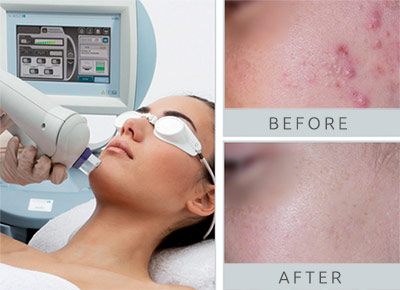 ipl-acne-treatment