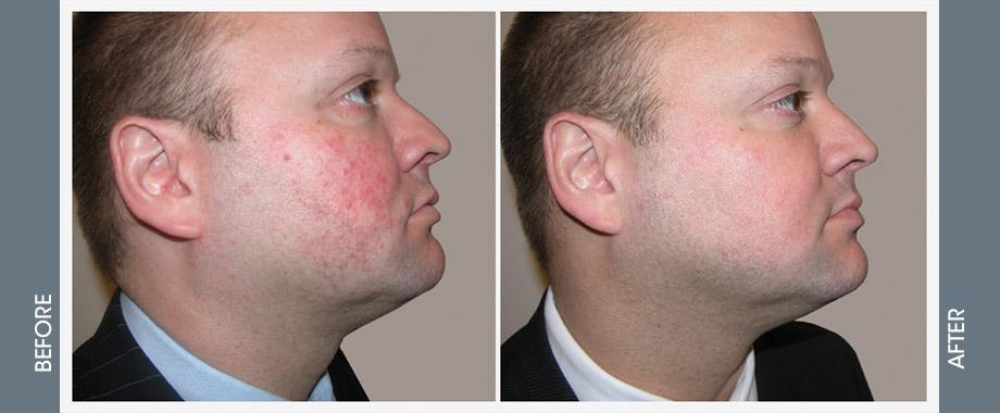 Ipl Rosacea Avora Skin Spa